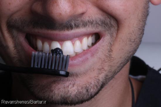 13 روش کاربردی و ارزان برای سفید کردن دندانها